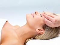 Akupunktur Therapie
